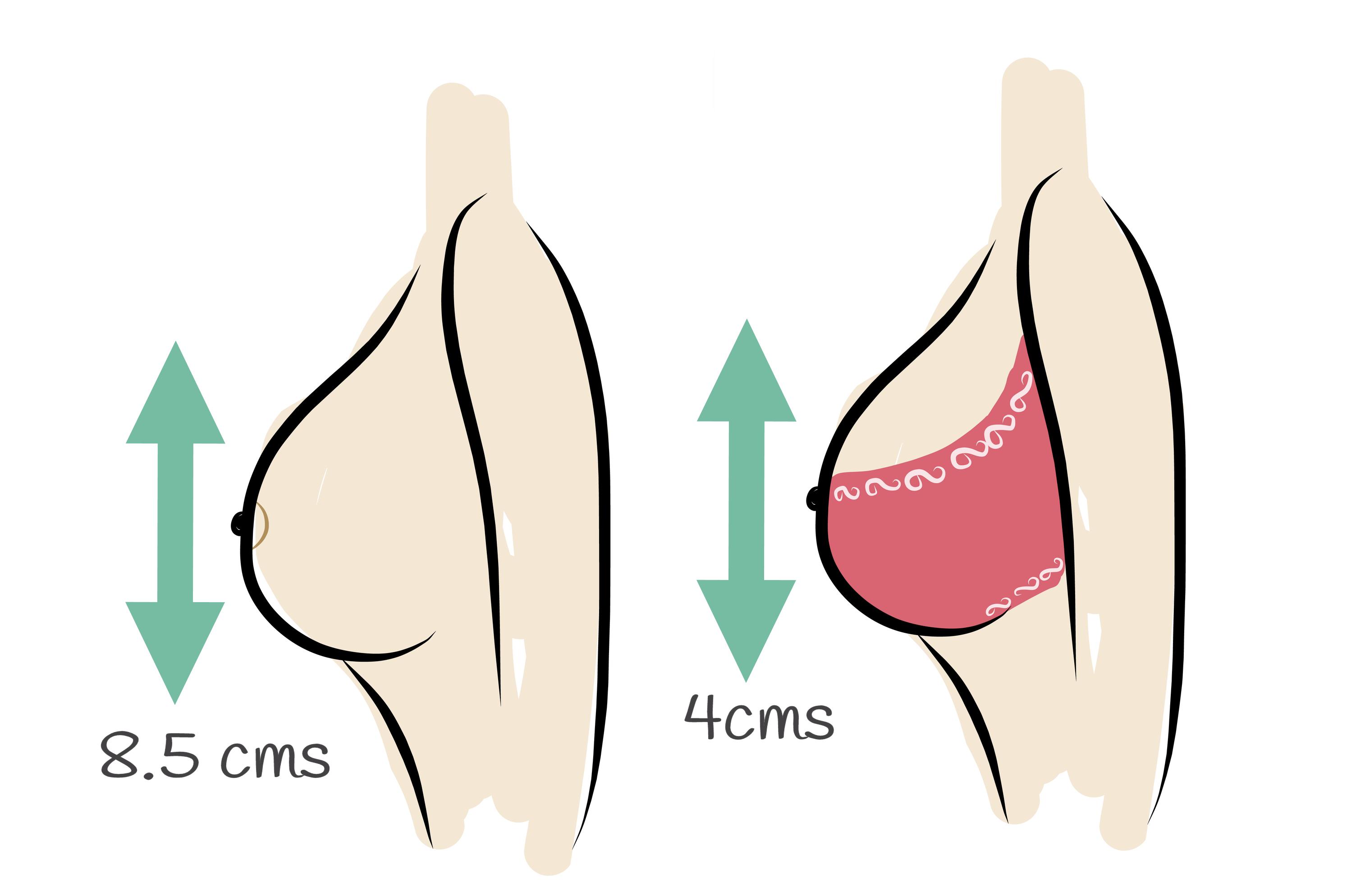 Importance of wearing a sports bra